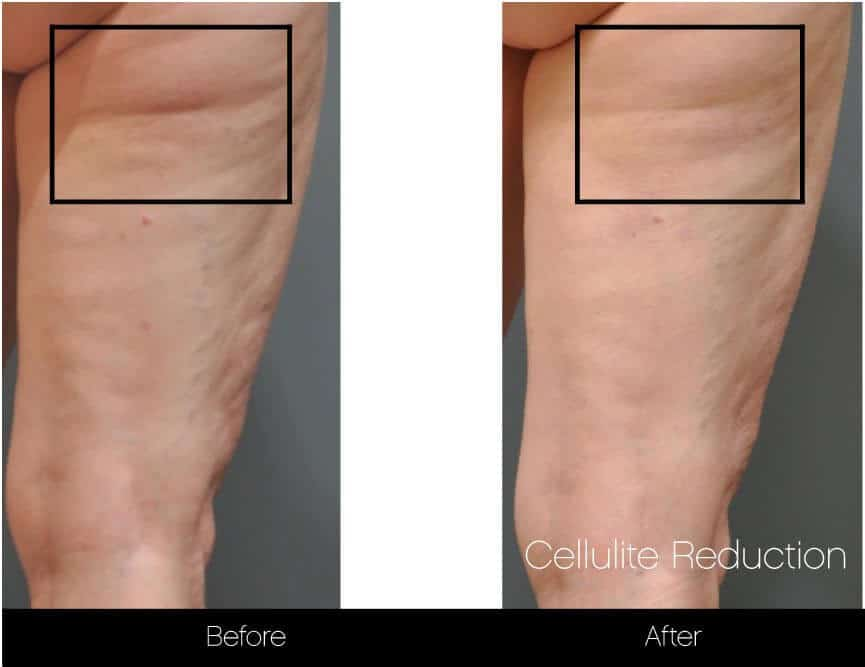 Cellutite -Before and After Gallery - Patient Photo 18