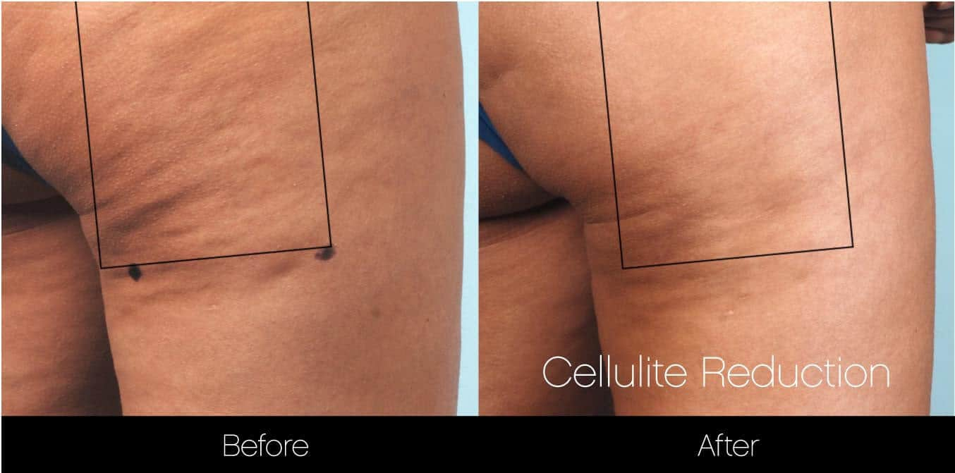 Cellutite -Before and After Gallery - Patient Photo 19