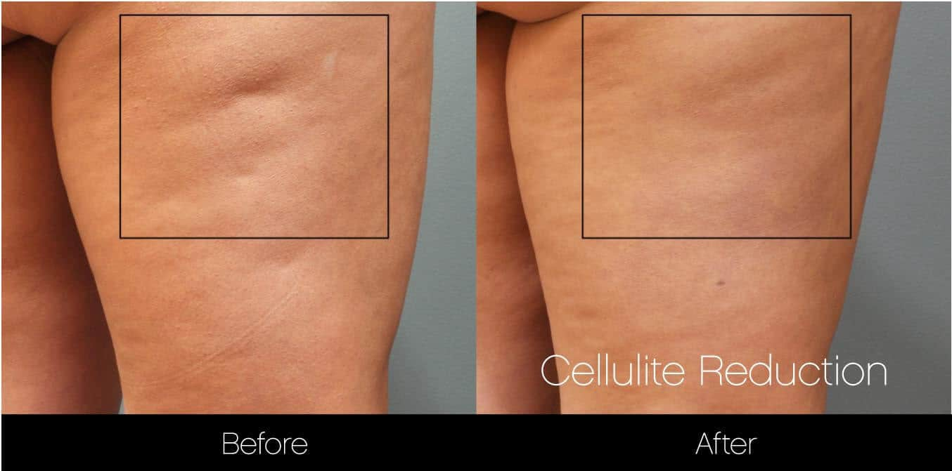 Cellutite -Before and After Gallery - Patient Photo 20