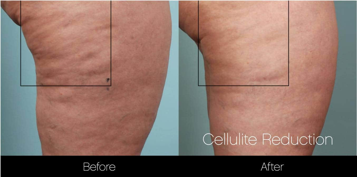 Cellutite -Before and After Gallery - Patient Photo 21
