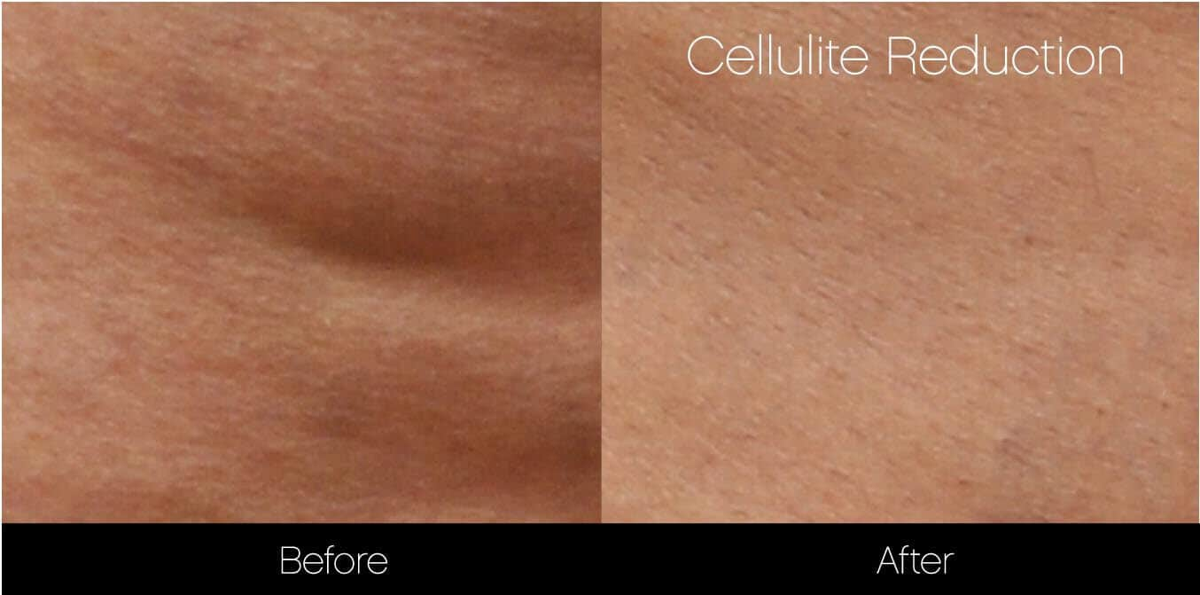 Cellutite -Before and After Gallery - Patient Photo 22