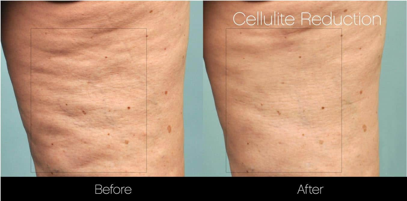 Cellutite -Before and After Gallery - Patient Photo 23