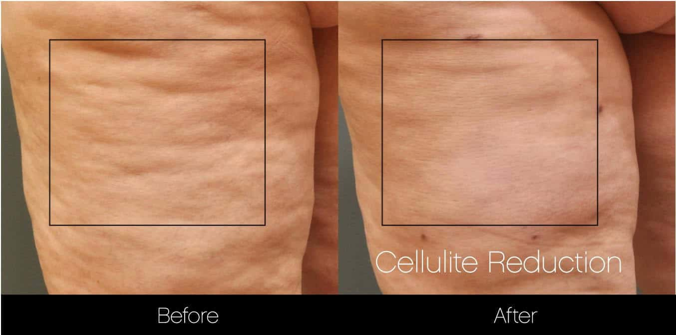 Cellutite -Before and After Gallery - Patient Photo 24