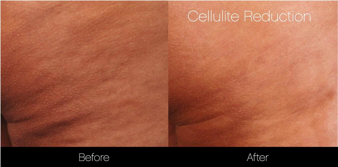 Cellutite -Before and After Gallery - Patient Photo 25