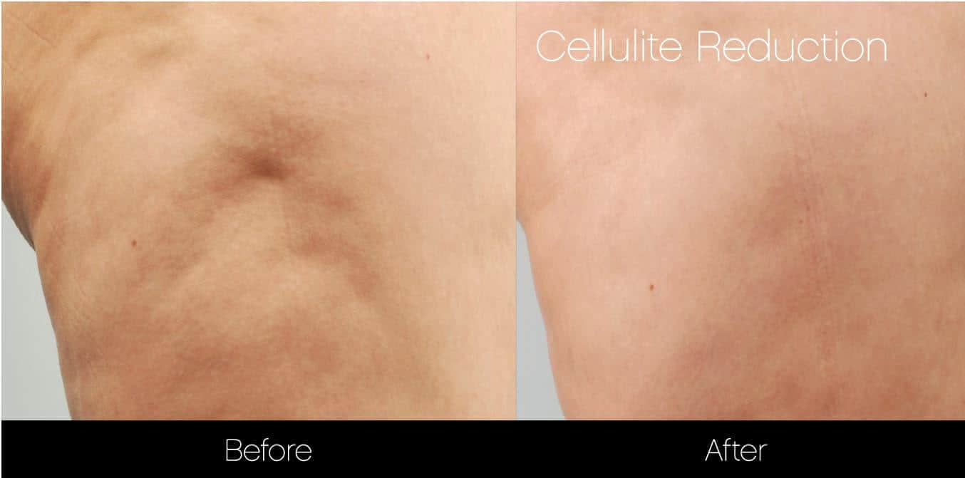 Cellutite -Before and After Gallery - Patient Photo 26