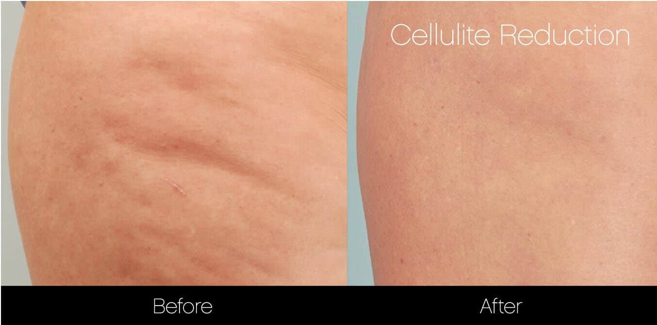 Cellutite -Before and After Gallery - Patient Photo 27