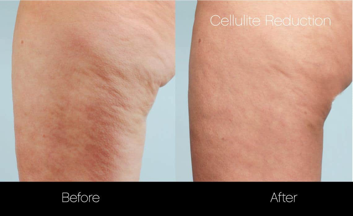 Cellutite -Before and After Gallery - Patient Photo 28