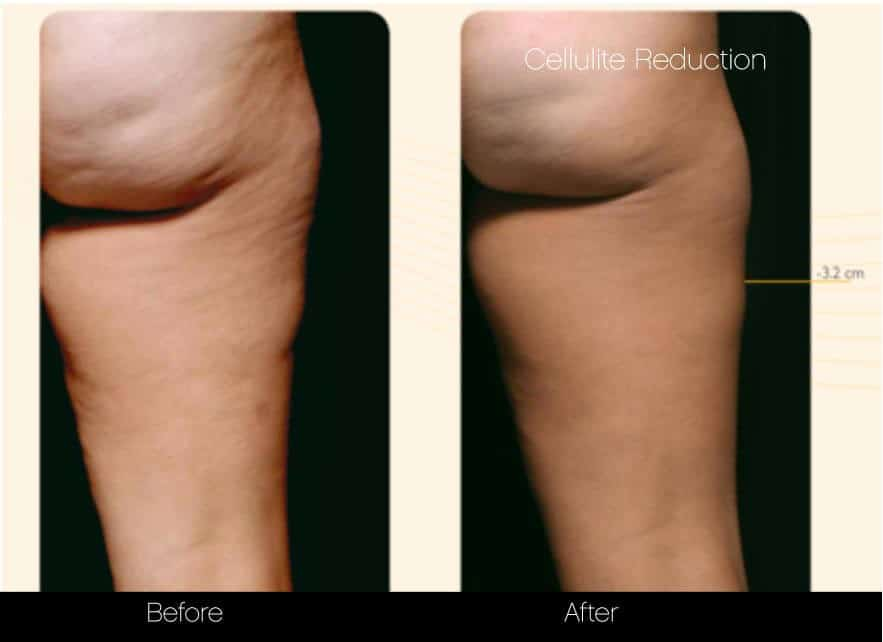 Cellutite -Before and After Gallery - Patient Photo 30