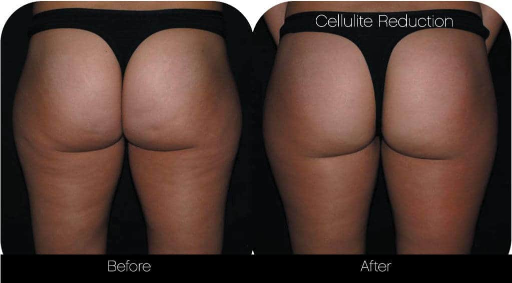 Cellutite -Before and After Gallery - Patient Photo 31