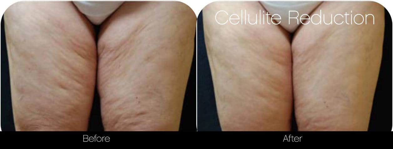 Cellutite -Before and After Gallery - Patient Photo 32