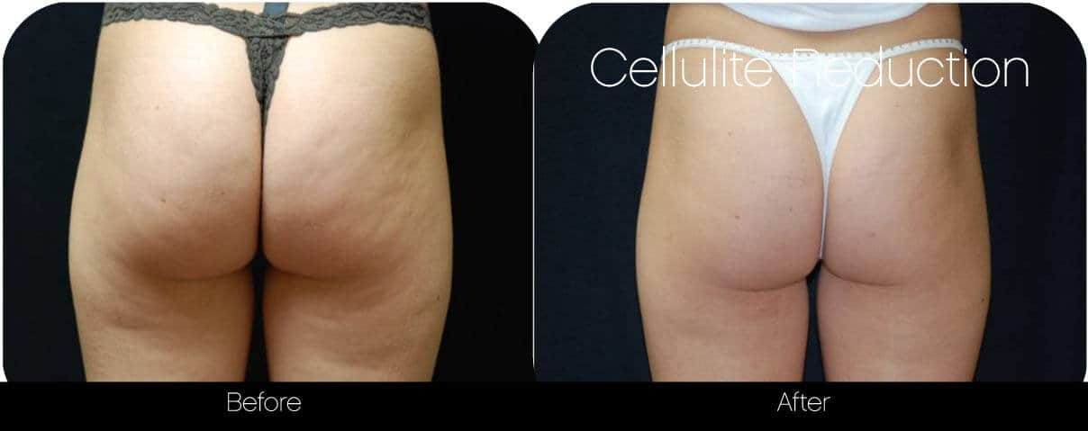 Cellutite -Before and After Gallery - Patient Photo 33