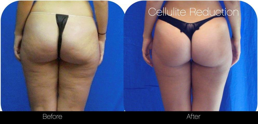 Cellutite -Before and After Gallery - Patient Photo 34