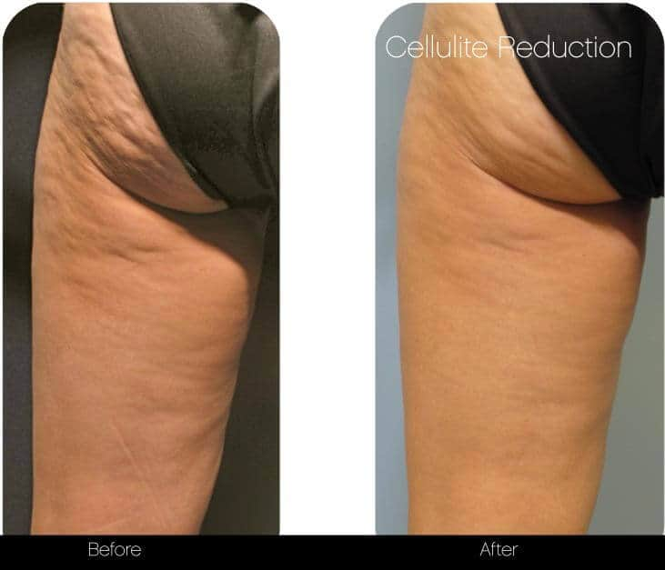 Cellutite -Before and After Gallery - Patient Photo 35