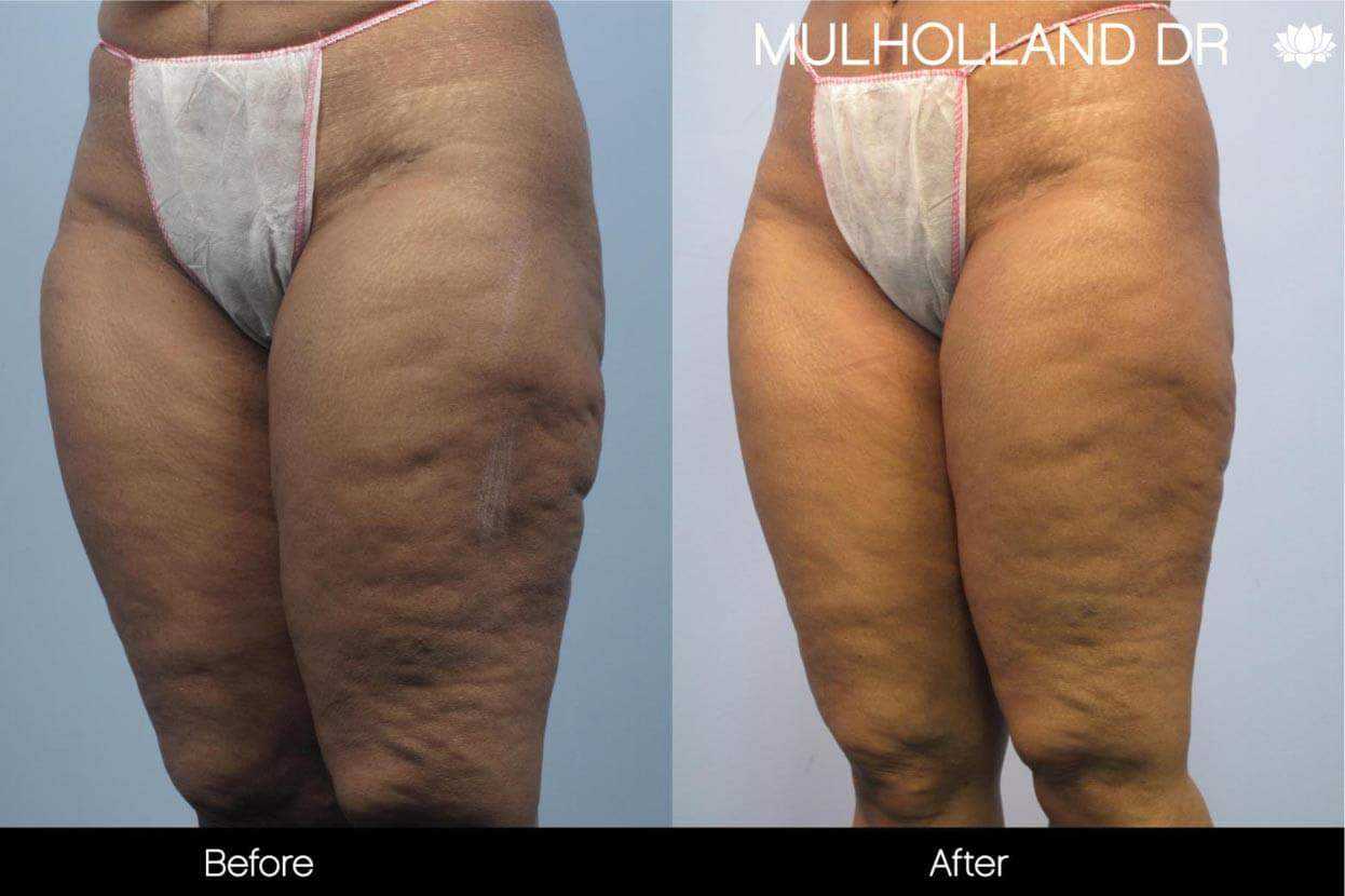 Cellutite -Before and After Gallery - Patient Photo 5
