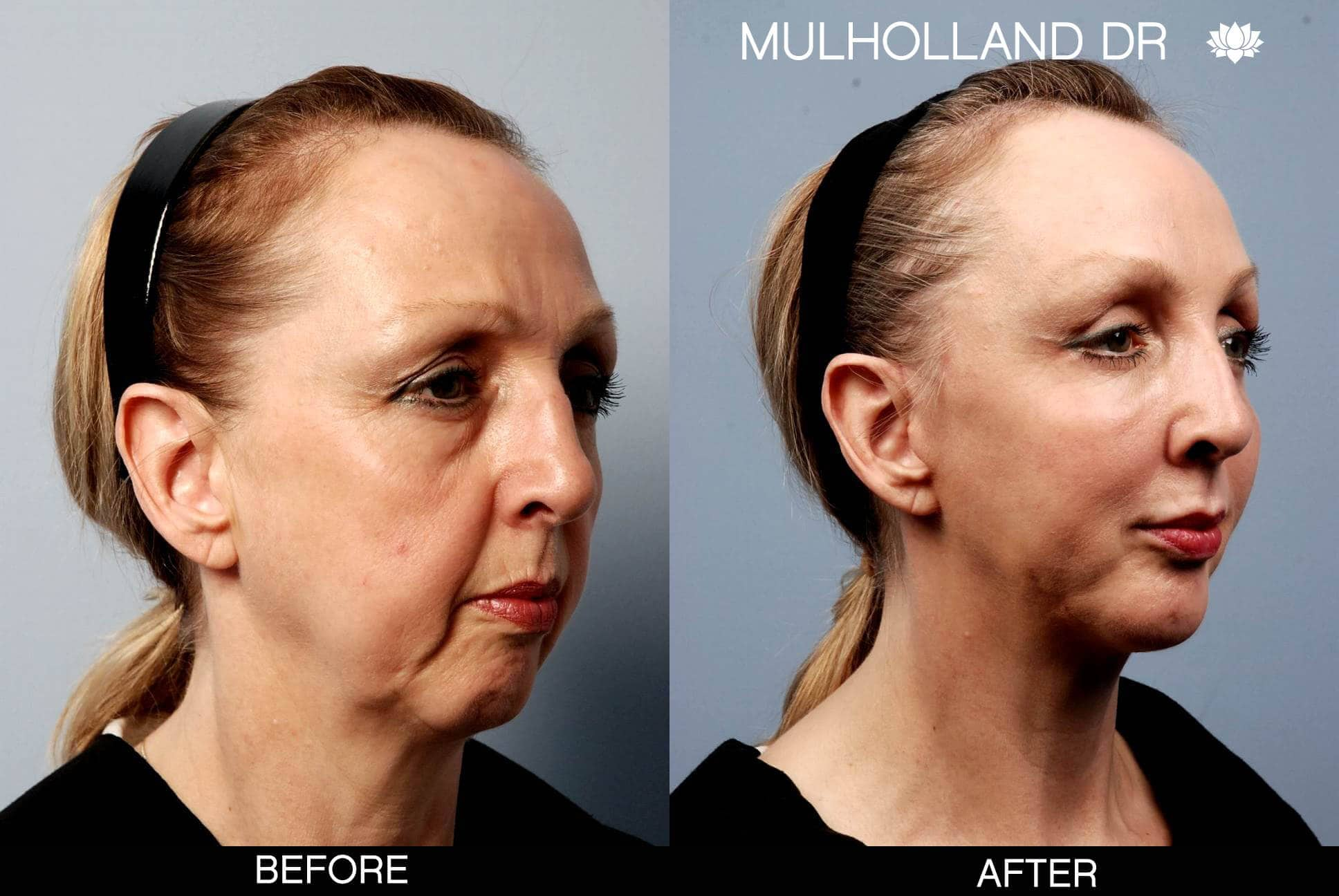 Cheek Lift - Before and After Gallery - Patient Photo 1