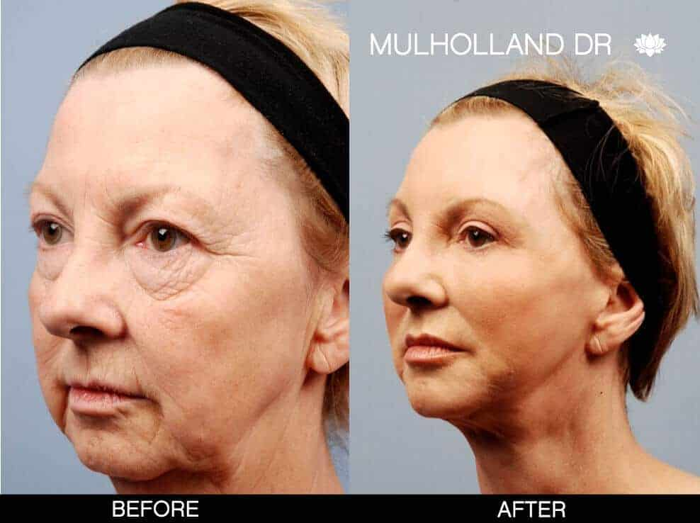 Cheek Lift - Before and After Gallery - Patient Photo 11