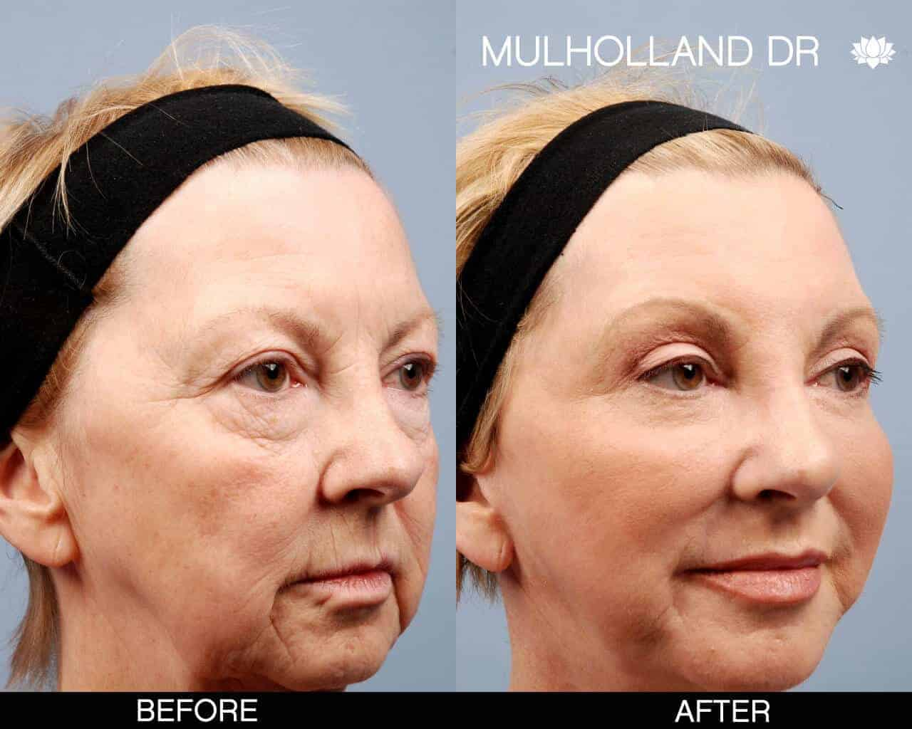 Cheek Lift - Before and After Gallery - Patient Photo 12