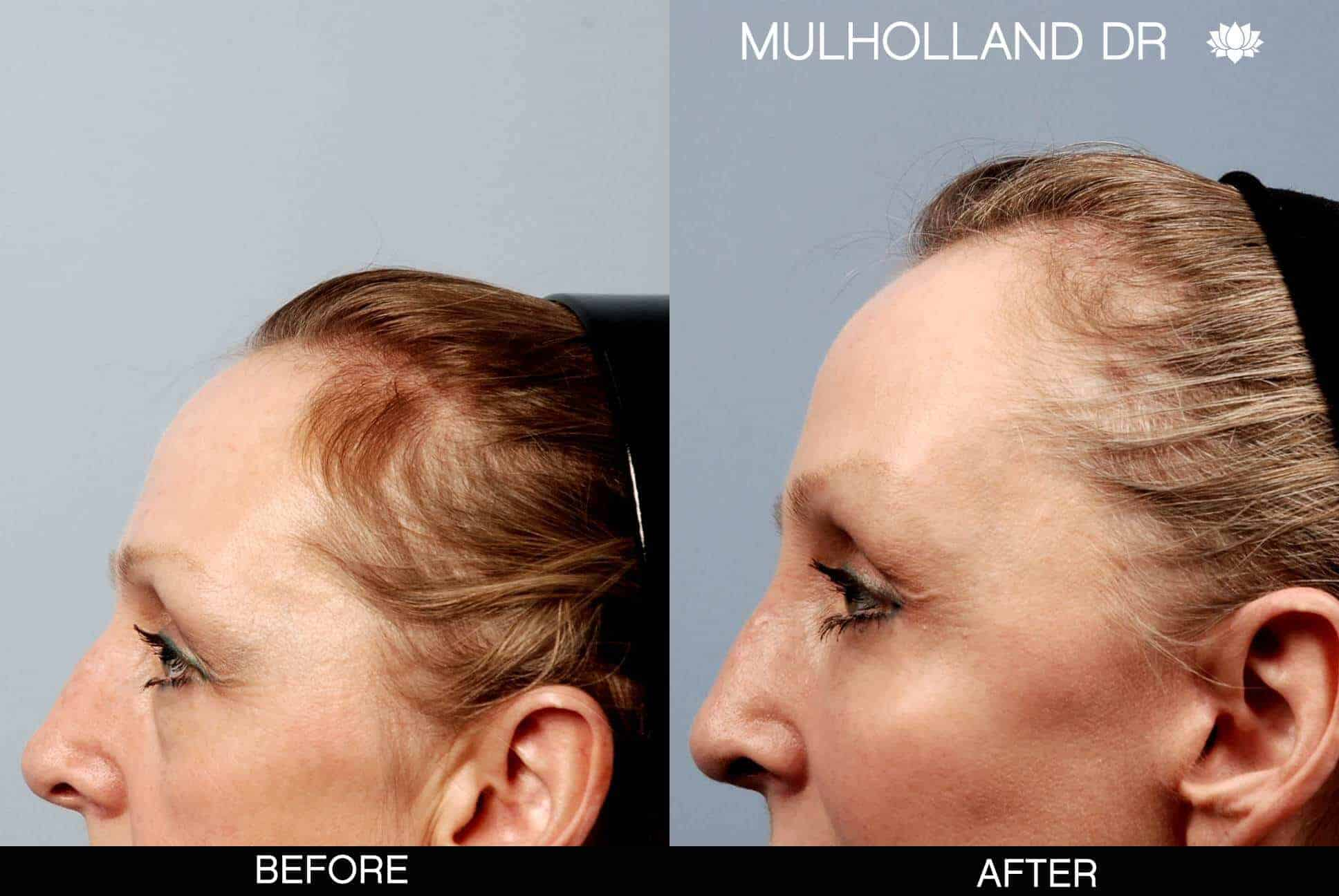 Cheek Lift - Before and After Gallery - Patient Photo 16