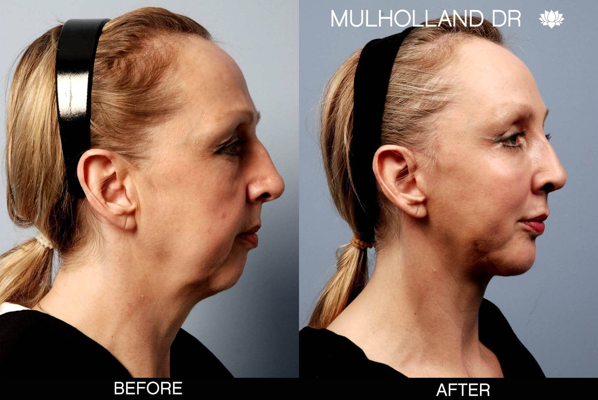 Cheek Lift - Before and After Gallery - Patient Photo 2