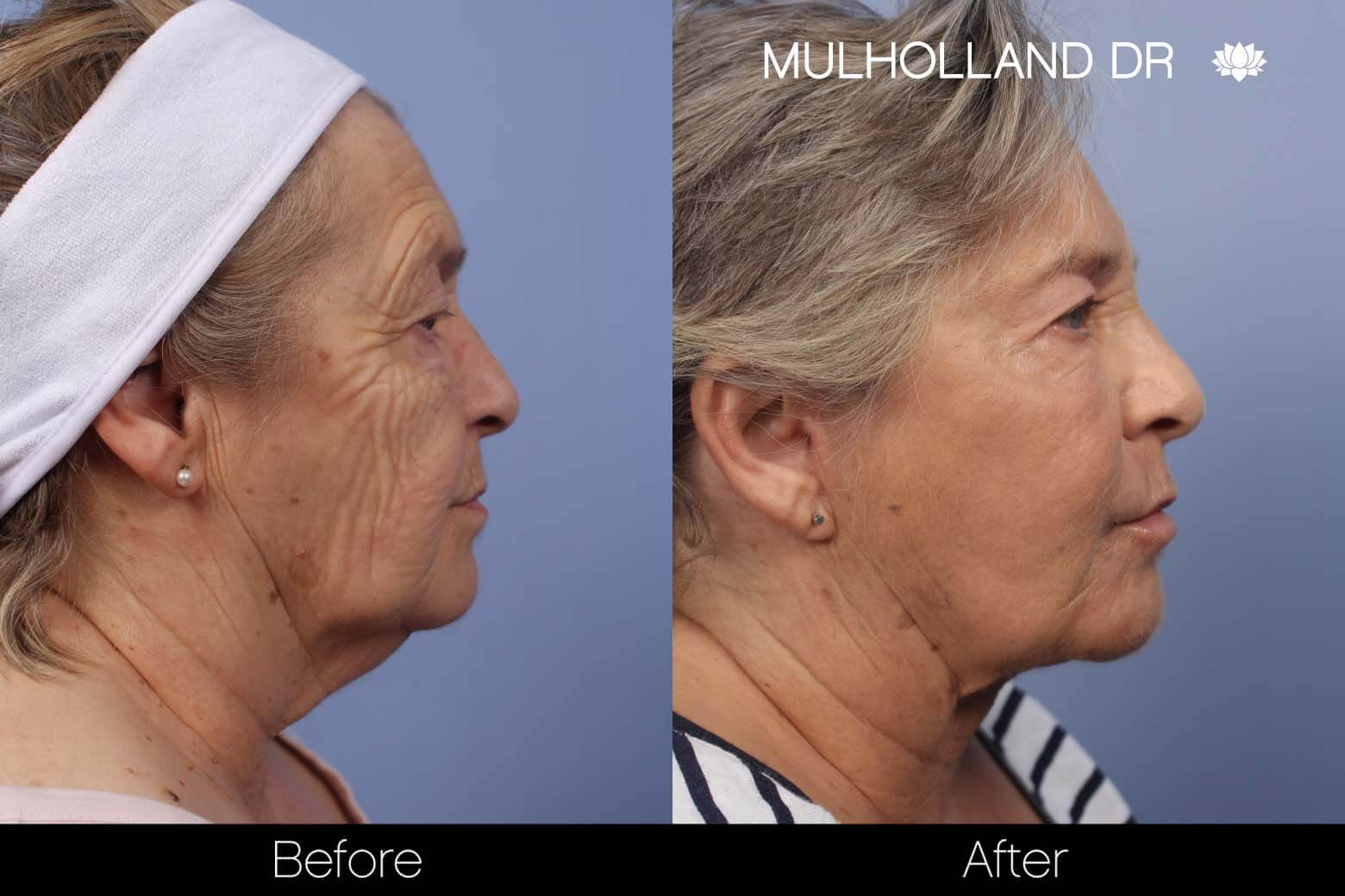 Cheek Lift - Before and After Gallery - Patient Photo 24