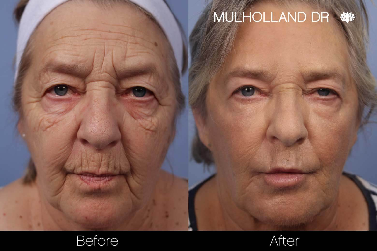 Cheek Lift - Before and After Gallery - Patient Photo 27
