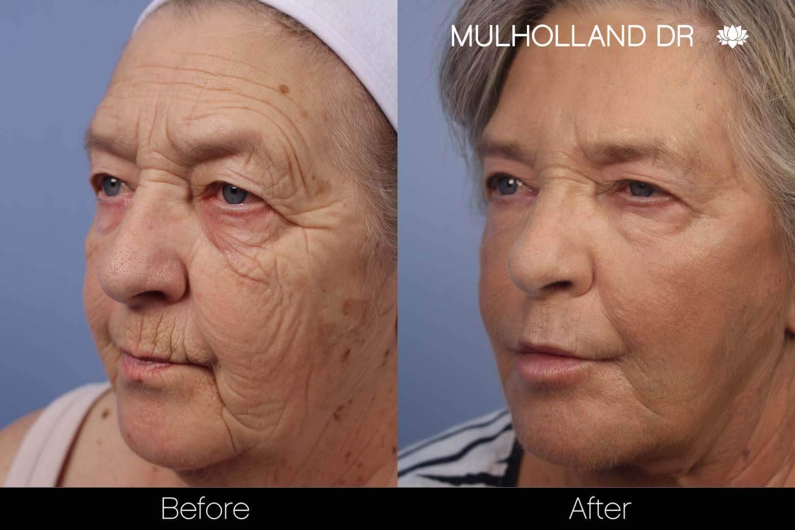 Cheek Lift - Before and After Gallery - Patient Photo 28