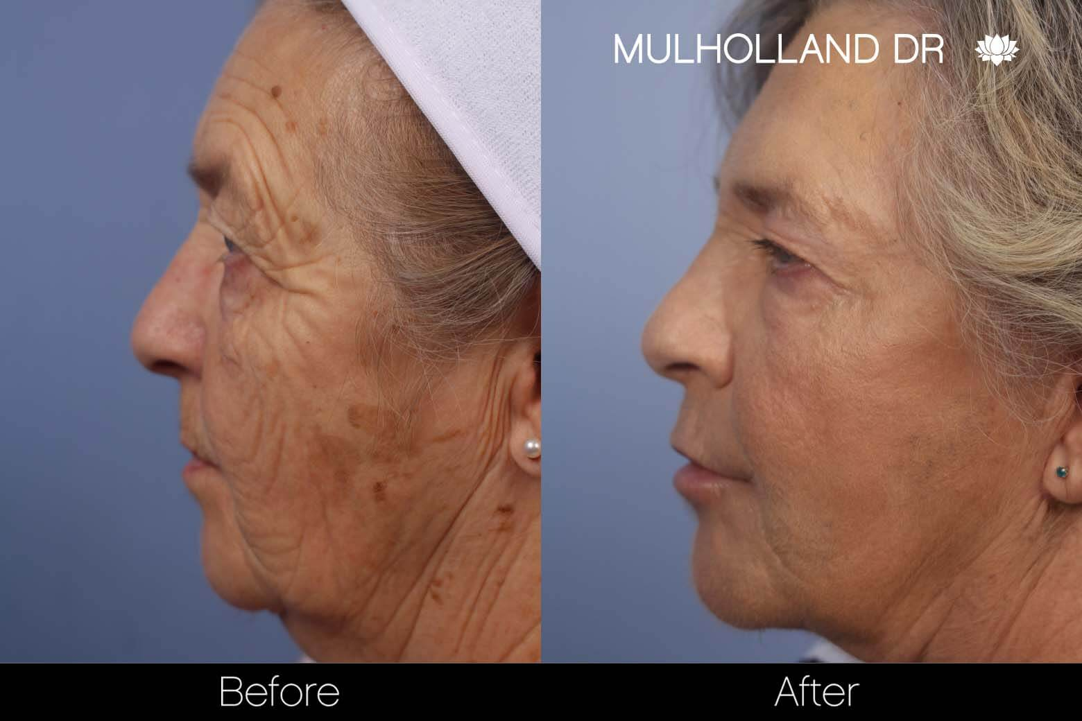 Cheek Lift - Before and After Gallery - Patient Photo 29