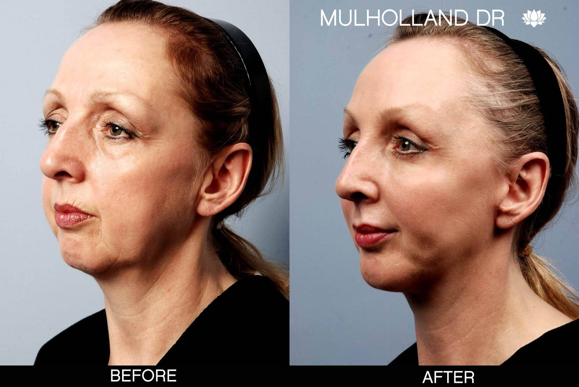 Cheek Lift - Before and After Gallery - Patient Photo 3