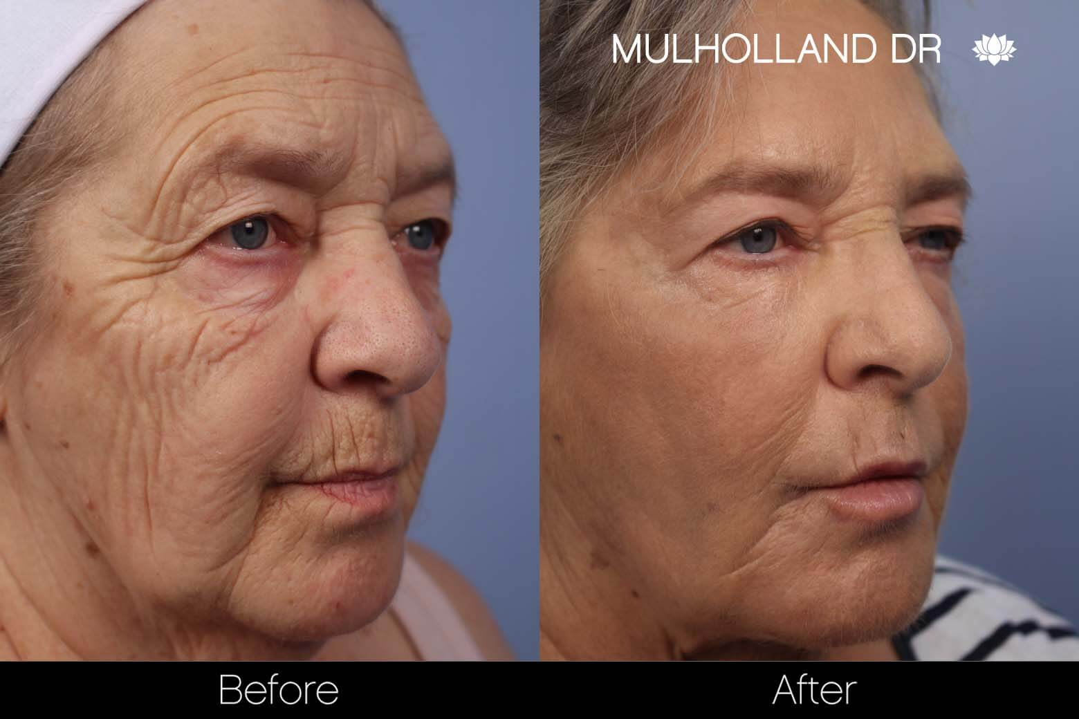 Cheek Lift - Before and After Gallery - Patient Photo 30