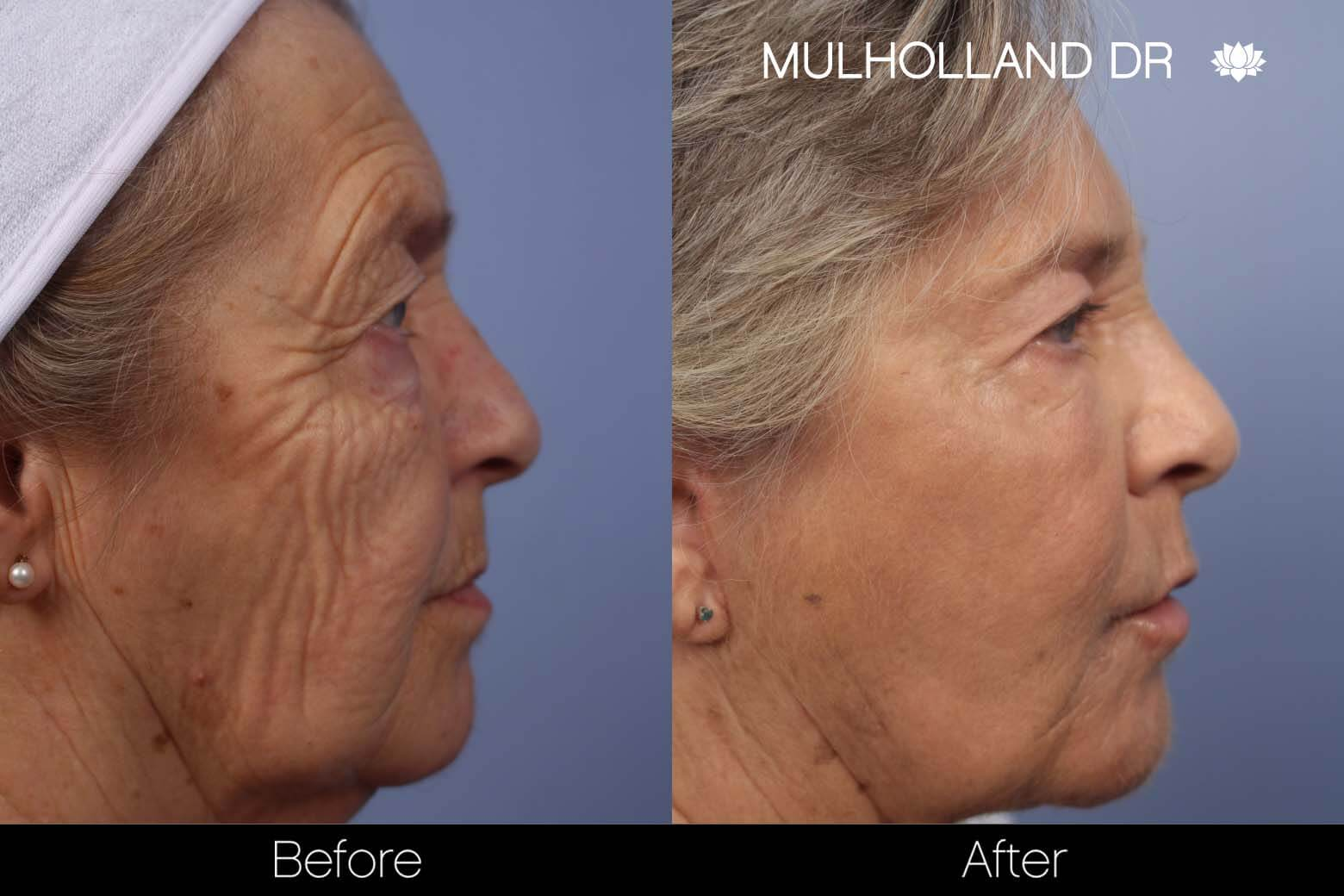 Cheek Lift - Before and After Gallery - Patient Photo 31