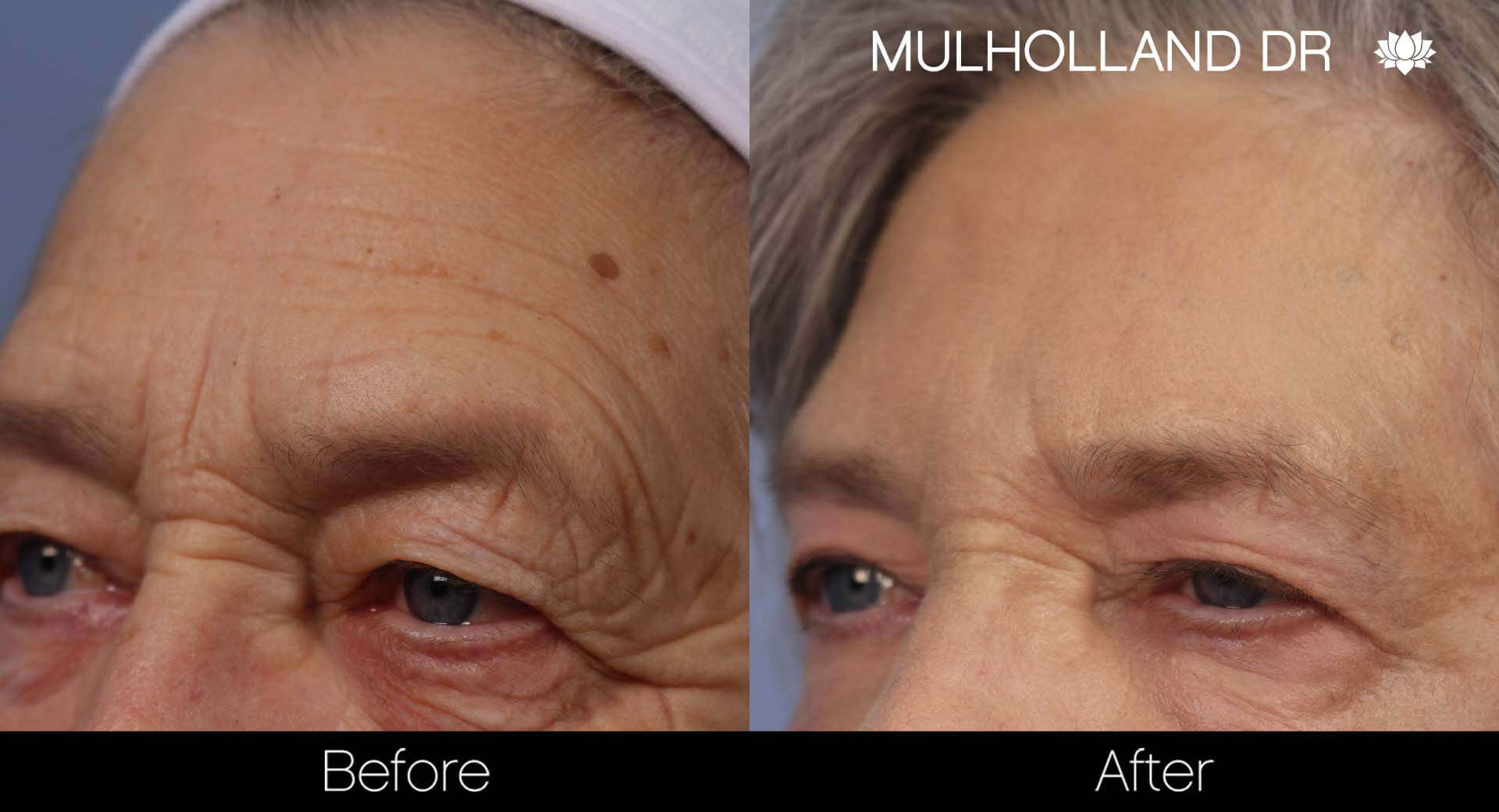Cheek Lift - Before and After Gallery - Patient Photo 33