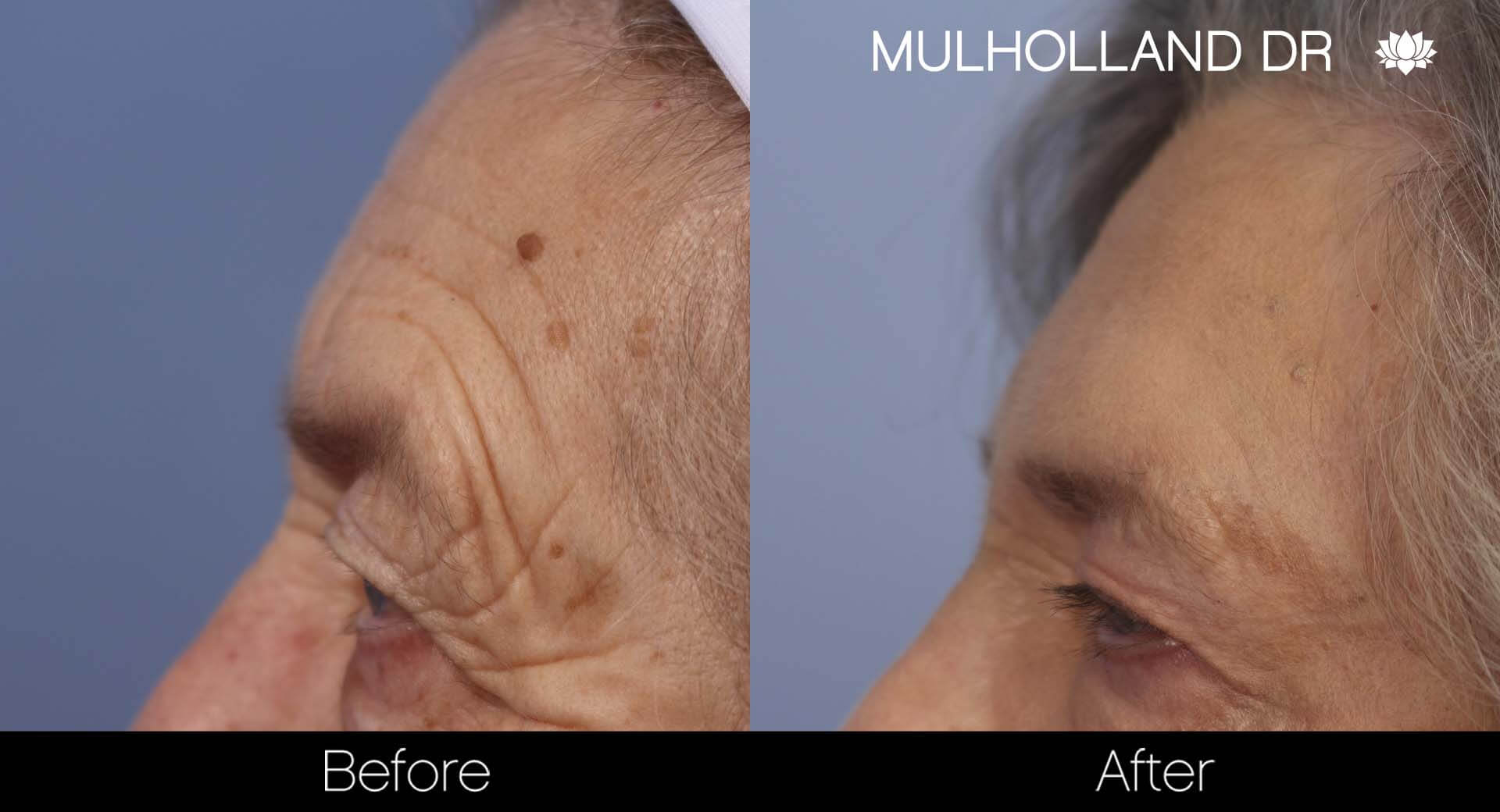 Cheek Lift - Before and After Gallery - Patient Photo 34