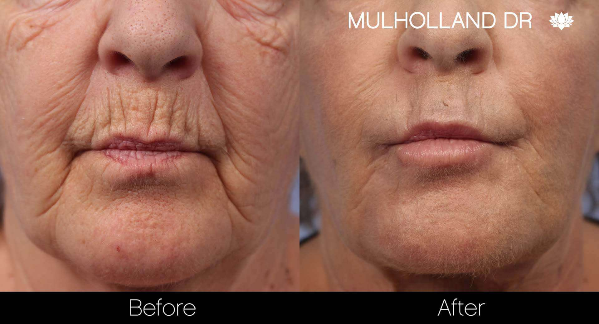 Cheek Lift - Before and After Gallery - Patient Photo 37