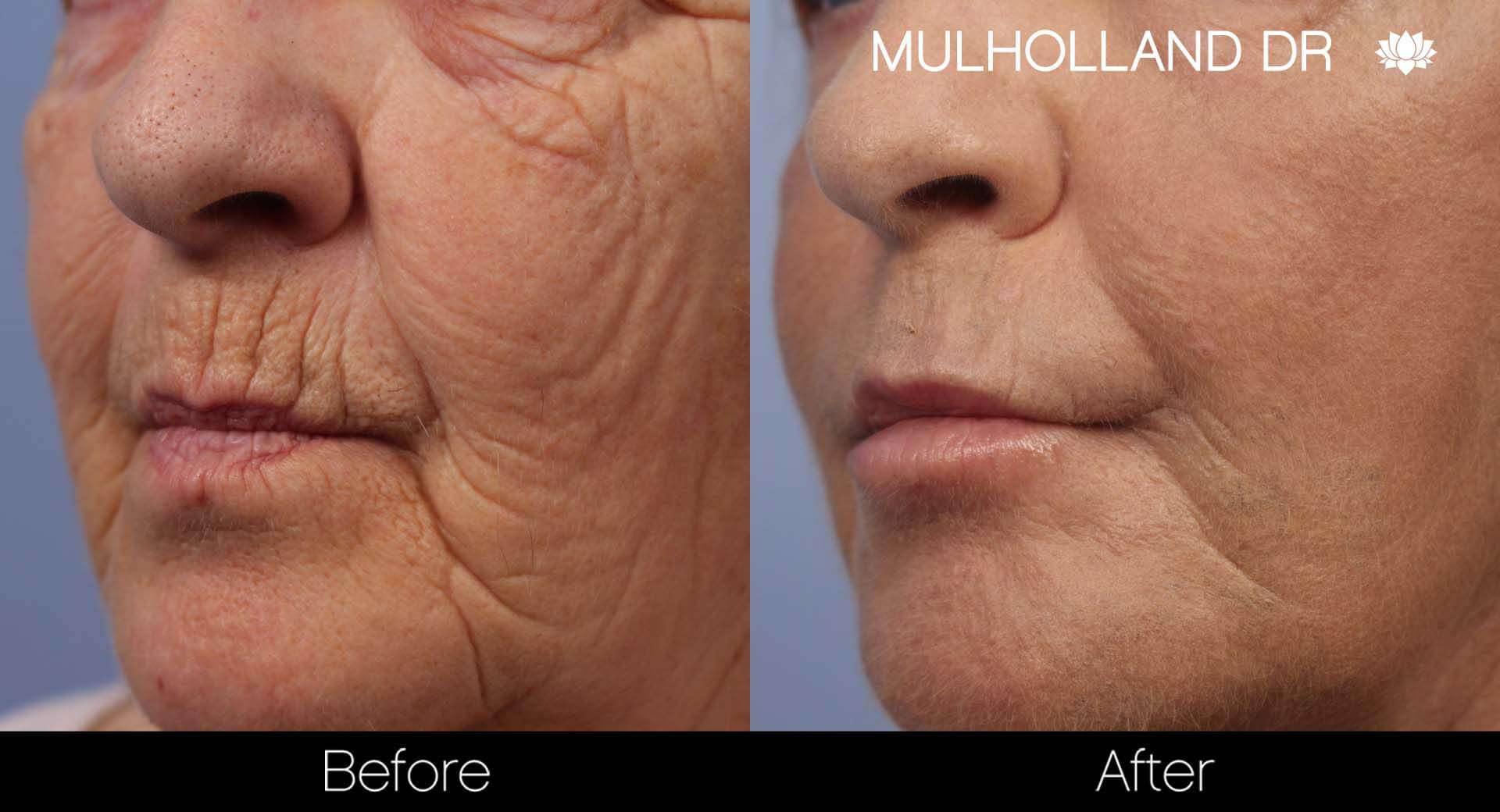 Cheek Lift - Before and After Gallery - Patient Photo 39