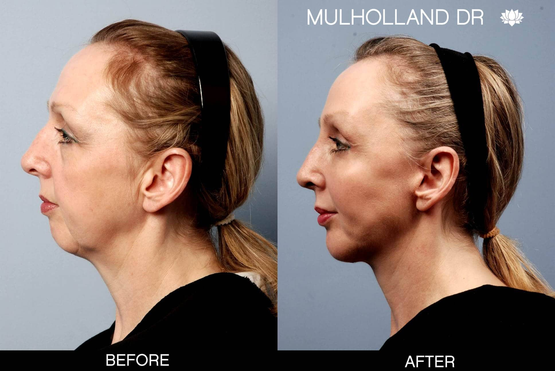 Cheek Lift - Before and After Gallery - Patient Photo 4