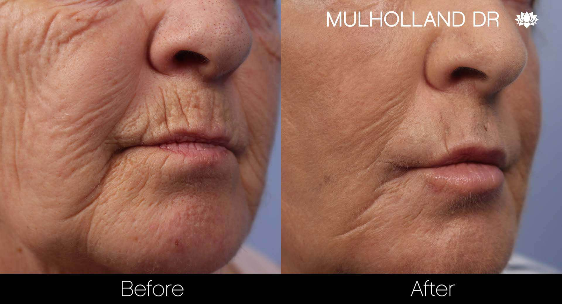 Cheek Lift - Before and After Gallery - Patient Photo 45