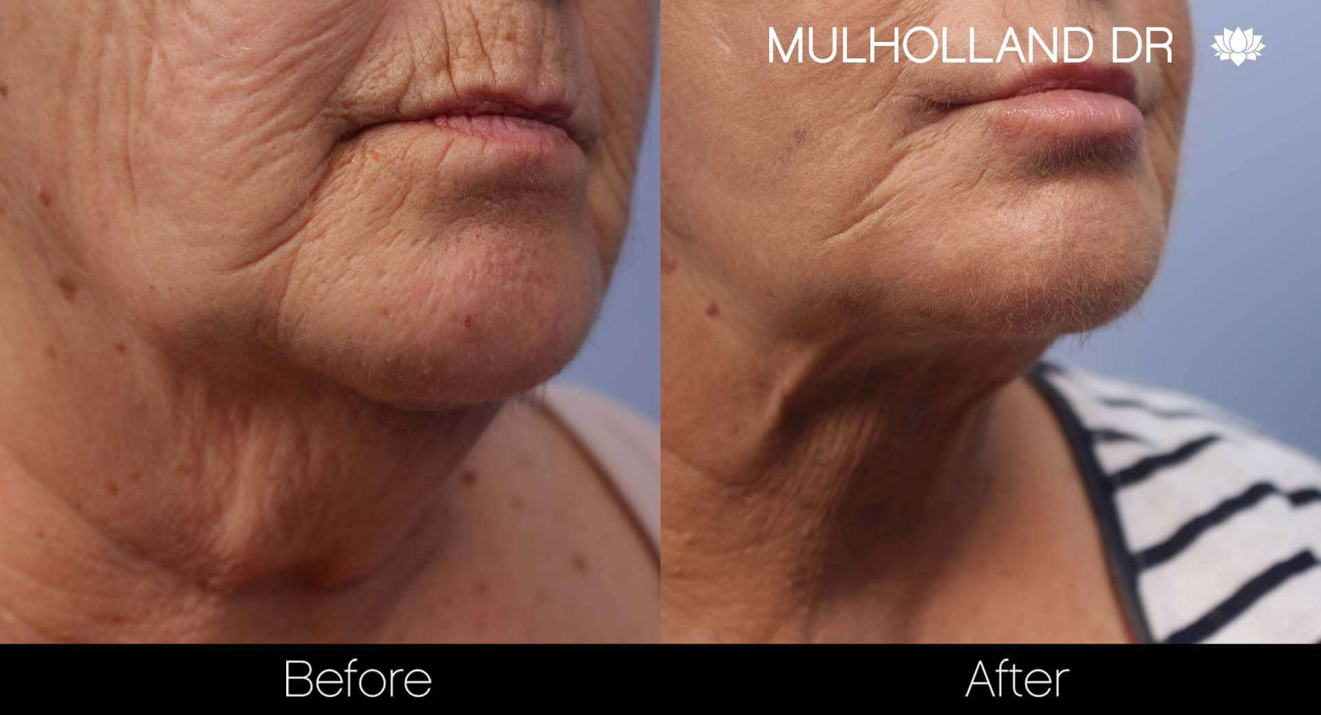 Cheek Lift - Before and After Gallery - Patient Photo 46