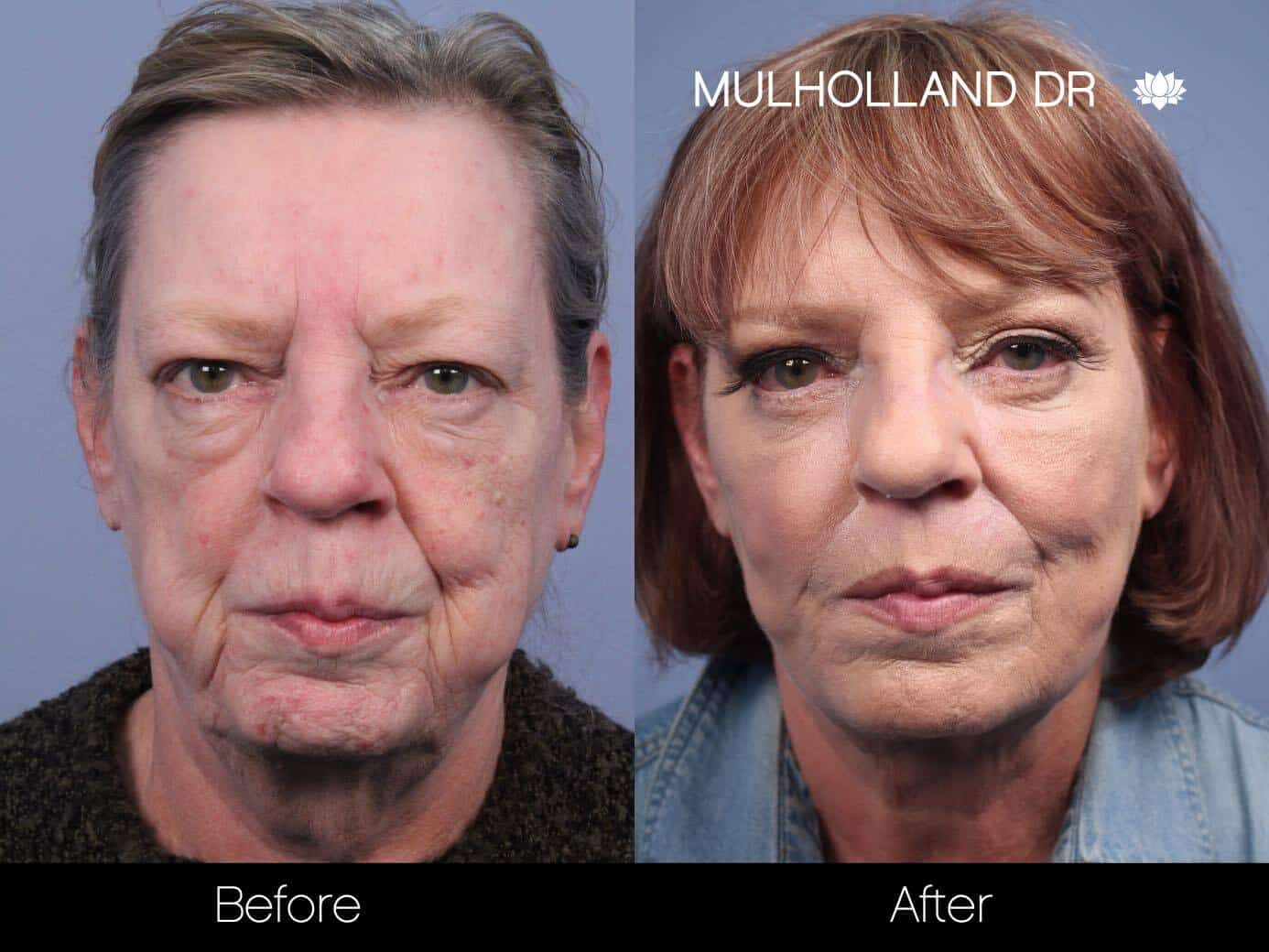 Cheek Lift - Before and After Gallery - Patient Photo 53