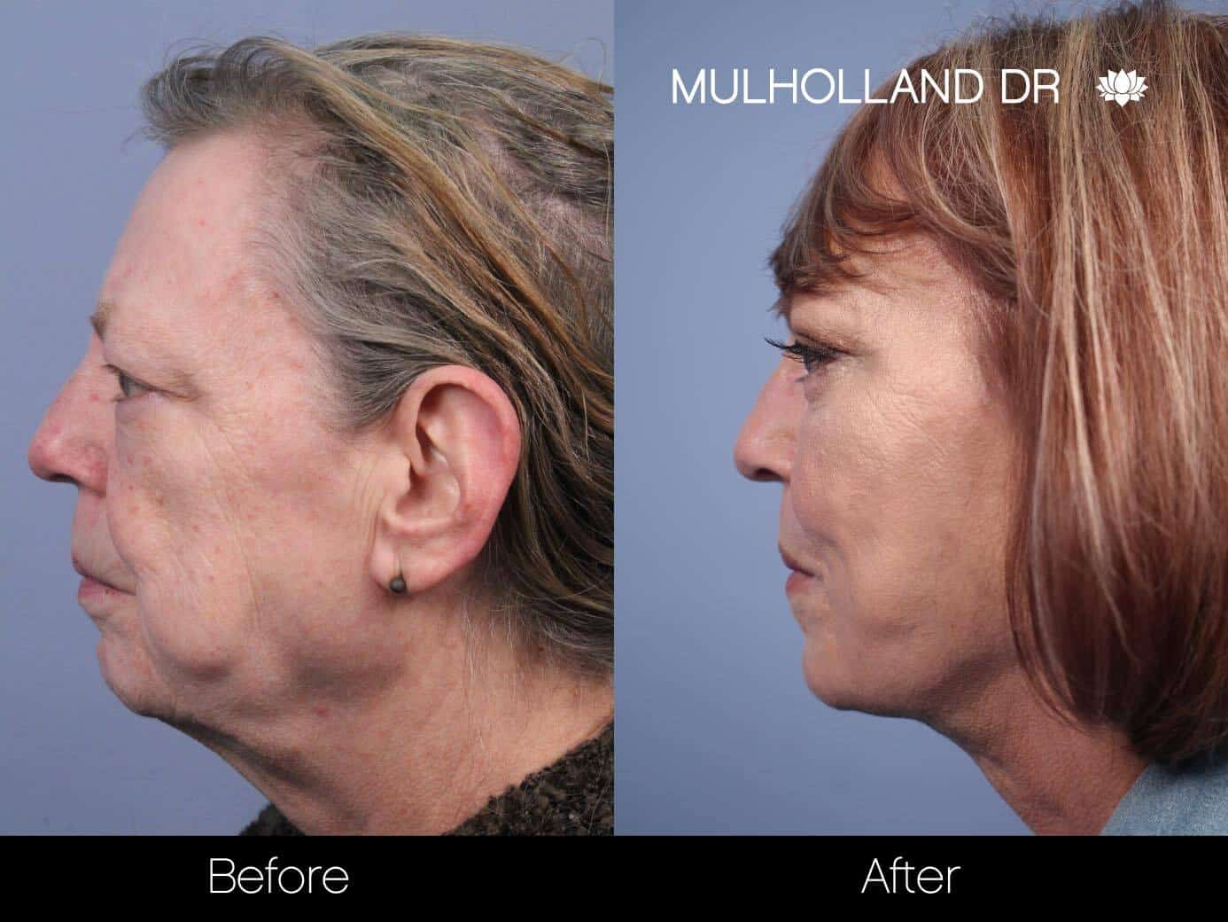 Cheek Lift - Before and After Gallery - Patient Photo 54
