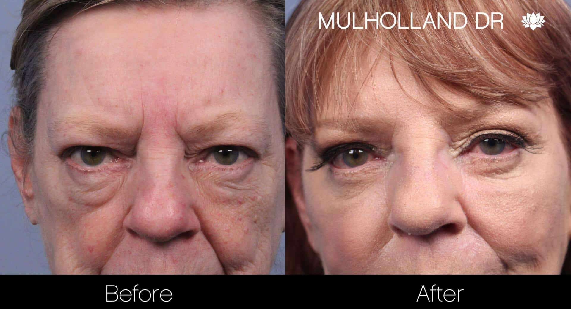 Cheek Lift - Before and After Gallery - Patient Photo 58