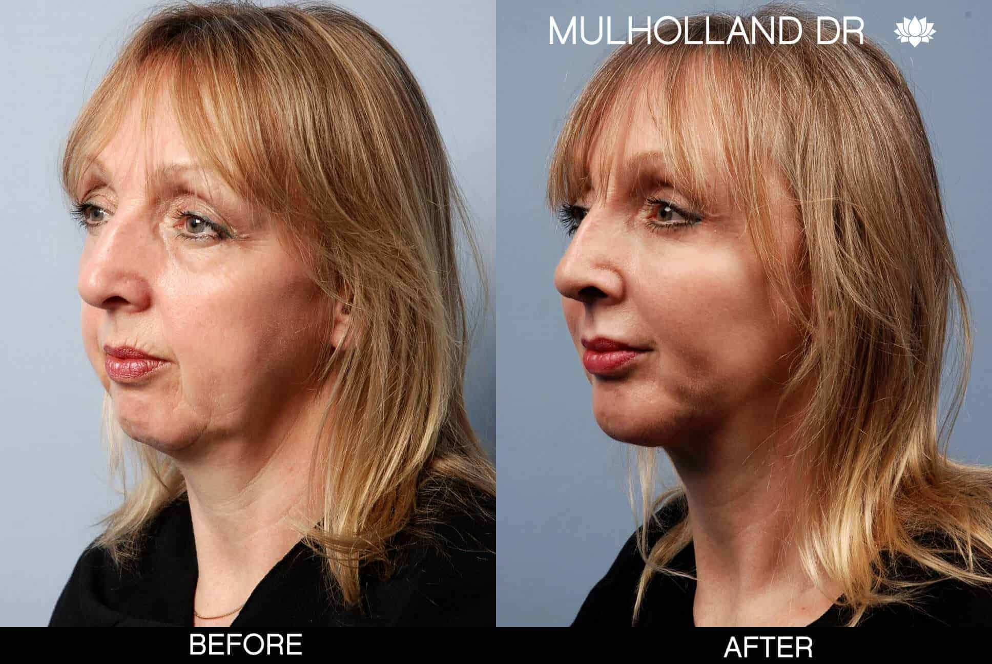 Cheek Lift - Before and After Gallery - Patient Photo 6