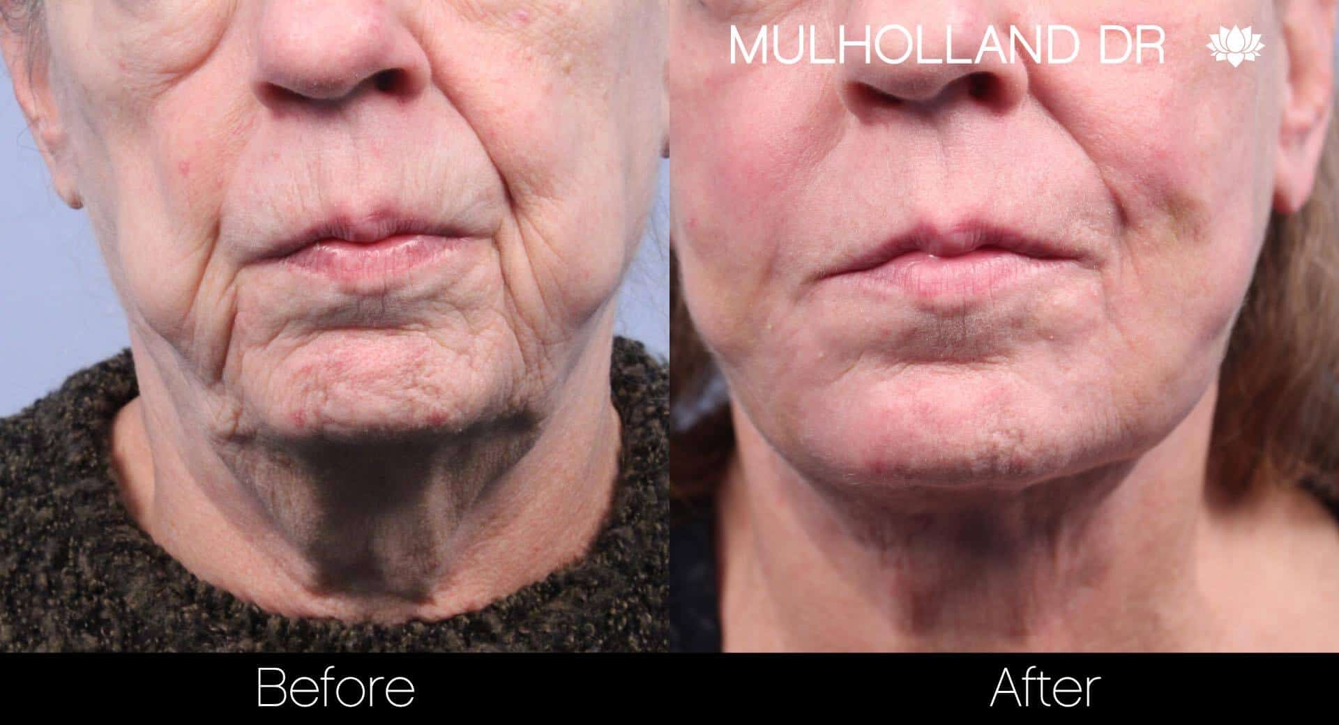 Cheek Lift - Before and After Gallery - Patient Photo 60