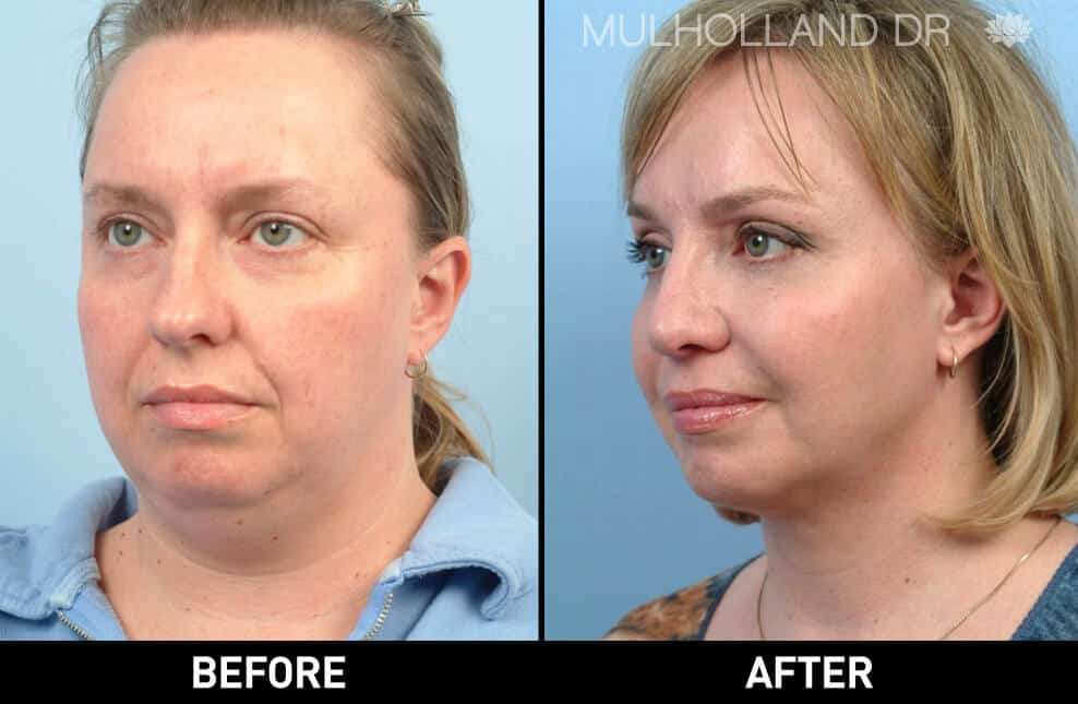 Cheek Lift - Before and After Gallery - Patient Photo 61