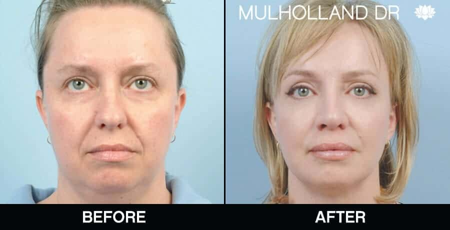 Cheek Lift - Before and After Gallery - Patient Photo 65