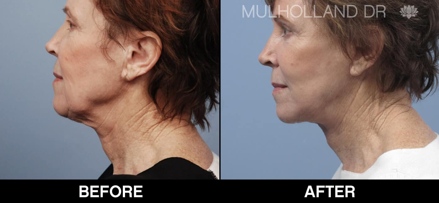 Cheek Lift - Before and After Gallery - Patient Photo 66