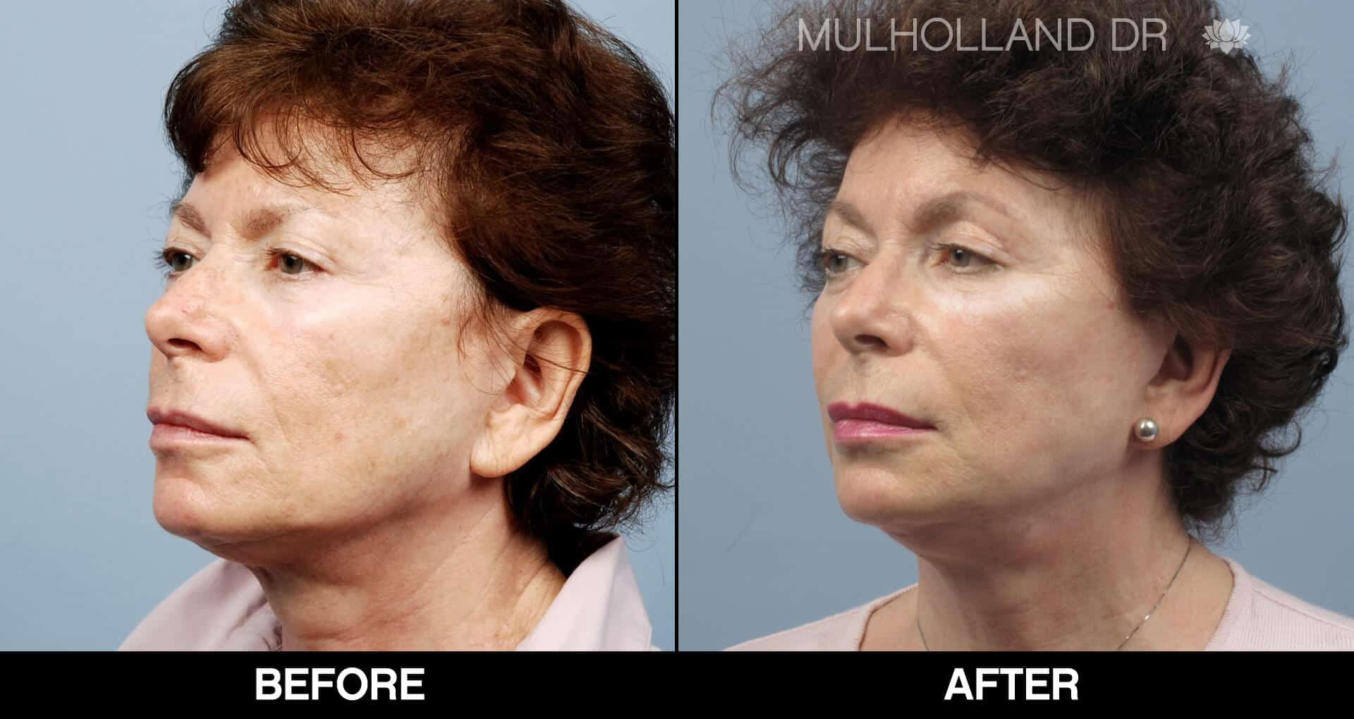 Cheek Lift - Before and After Gallery - Patient Photo 67