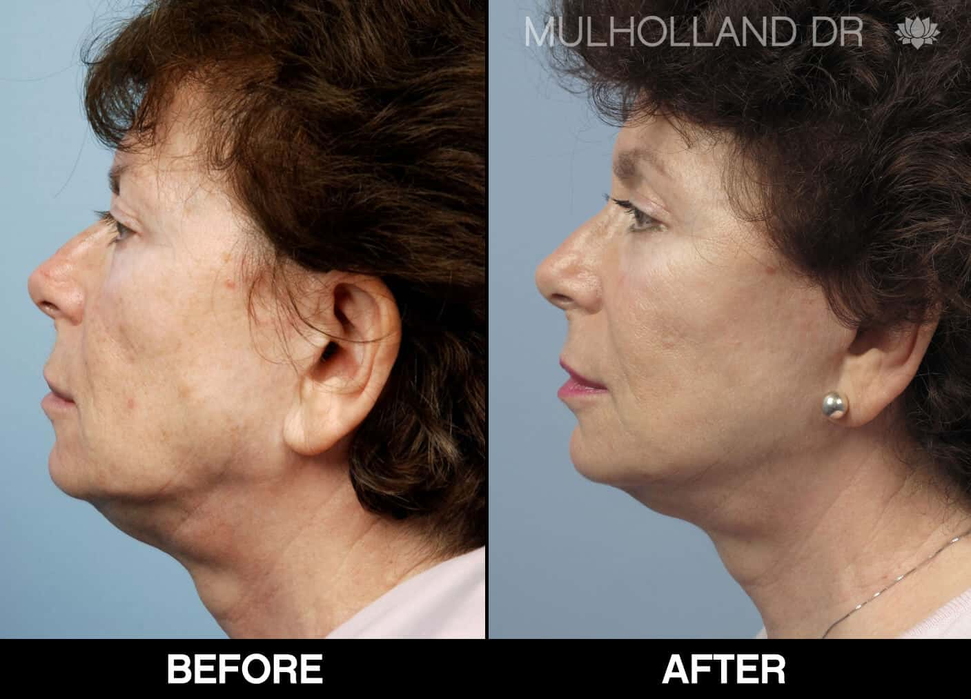 Cheek Lift - Before and After Gallery - Patient Photo 69