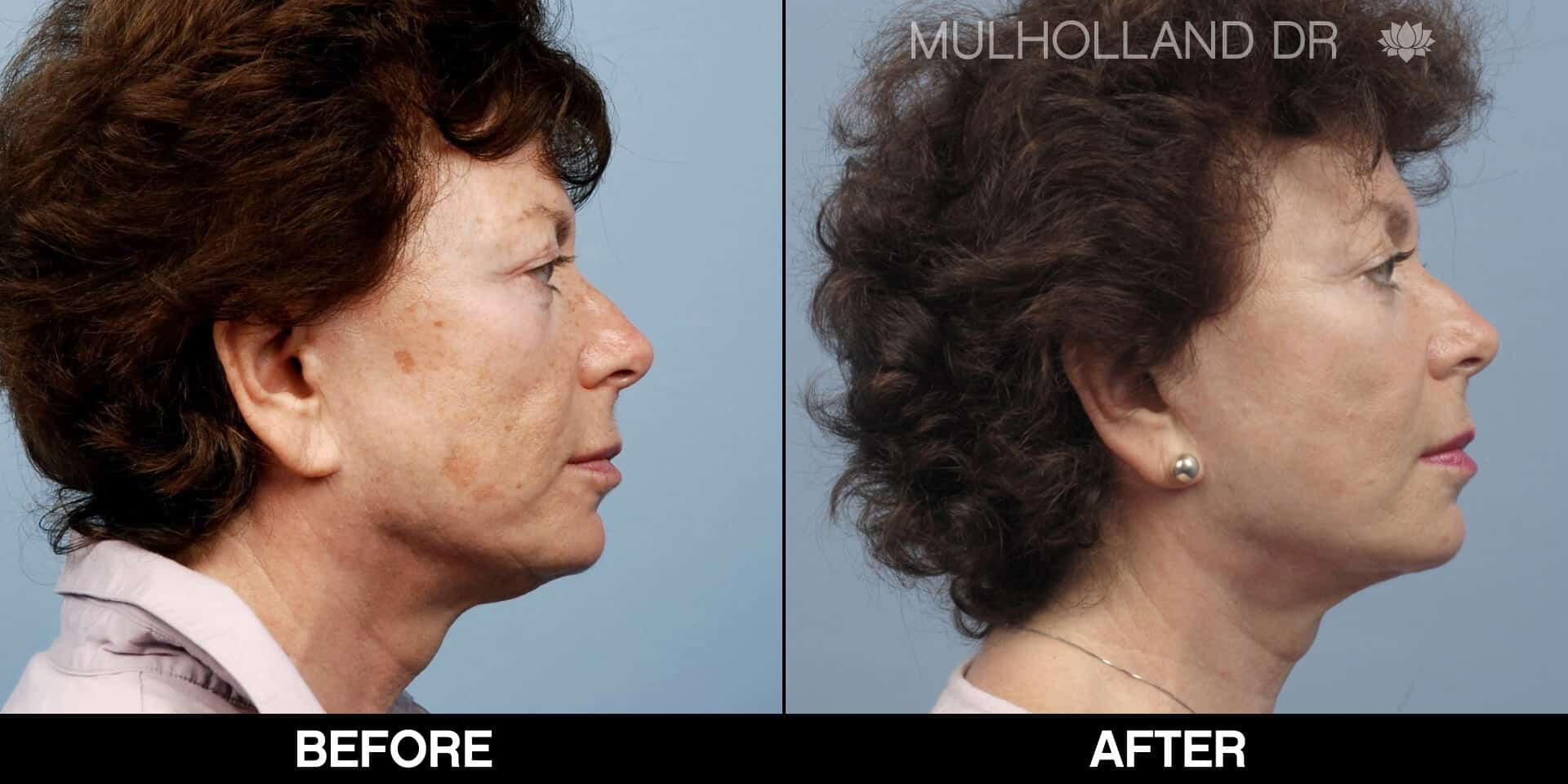 Cheek Lift - Before and After Gallery - Patient Photo 70