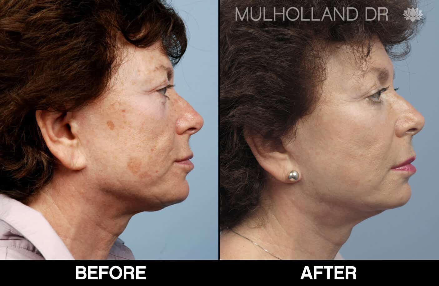 Cheek Lift - Before and After Gallery - Patient Photo 71