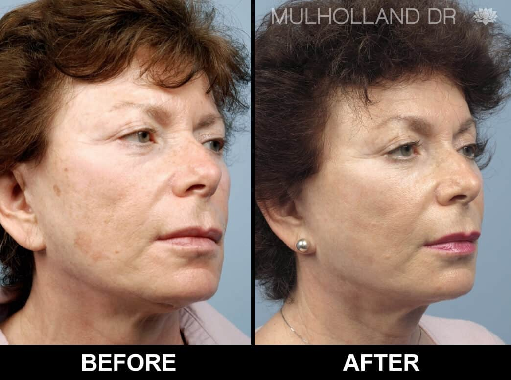 Cheek Lift - Before and After Gallery - Patient Photo 72